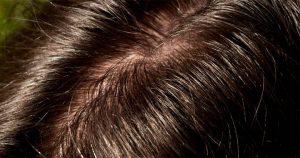Greasy-looking scalp