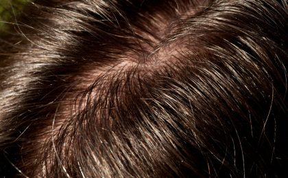 Image result for oily hair